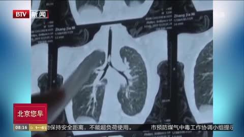 """[视频]耳鼻喉科医生忙了七天 气管异物堪比""""坚果拼盘"""""""