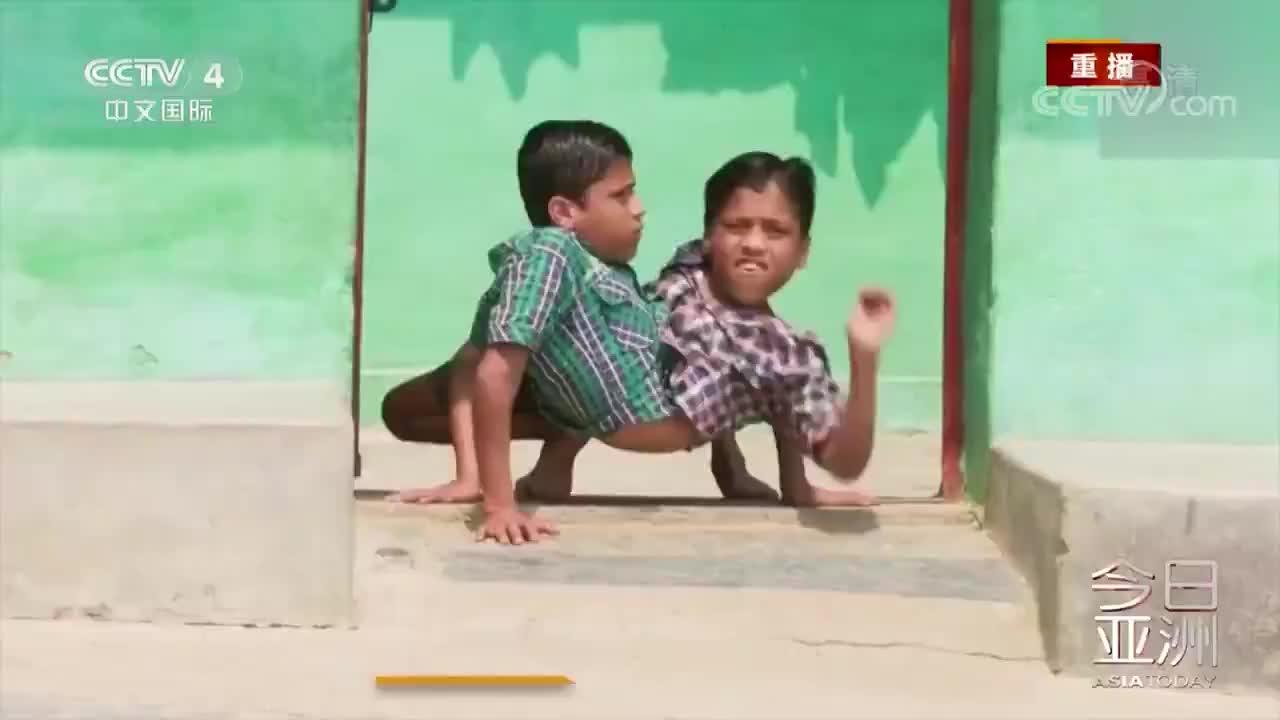 [视频]励志!印18岁连体双胞胎 腰肢相连有共同的胃