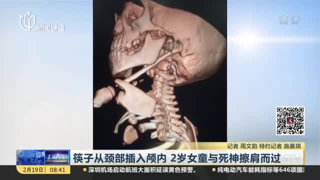 [视频]筷子从颈部插入颅内 2岁女童与死神擦肩而过