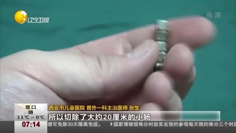 """[视频]孩子误吞7颗""""磁力珠"""" 致12处穿孔20公分小肠被切除"""