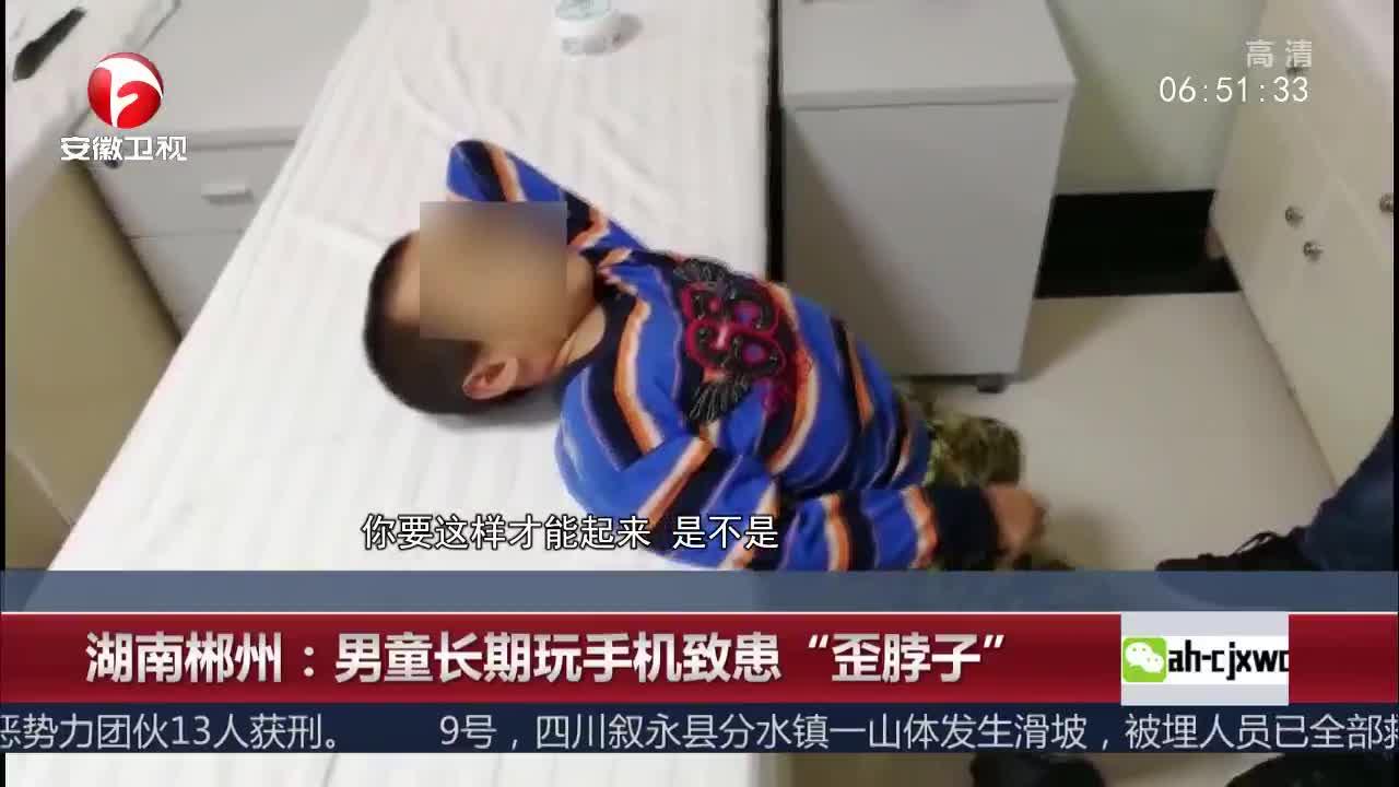 """[视频]湖南郴州:男童长期玩手机致患""""歪脖子"""""""