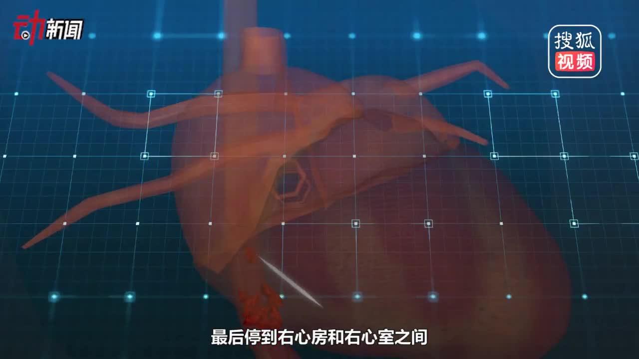 [视频]扎心!25岁姑娘心脏中取出6厘米牙签医生:稍有偏差可能心脏破裂