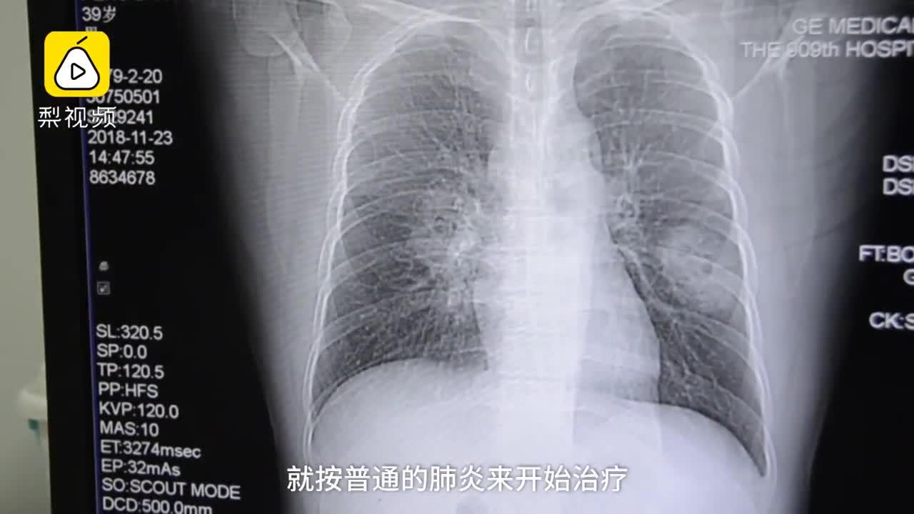 [视频]男子肺部真菌感染 平时爱闻臭袜子