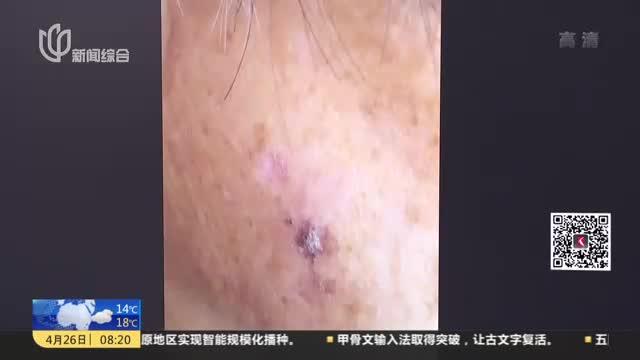 """[视频]老人脸上长出""""老年斑"""" 竟是癌症病变前兆"""