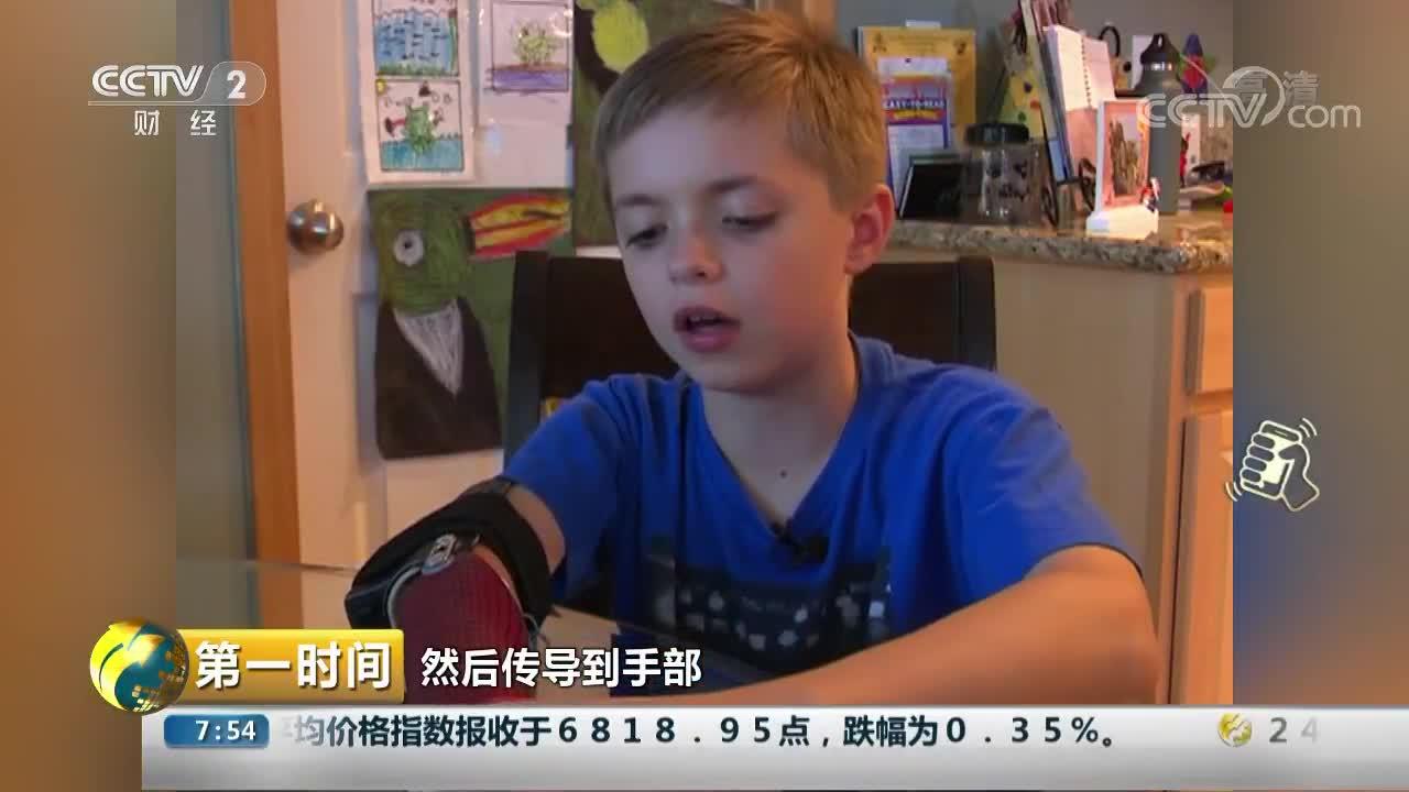 [视频]美国:3D打印假肢 让残疾男孩重燃希望
